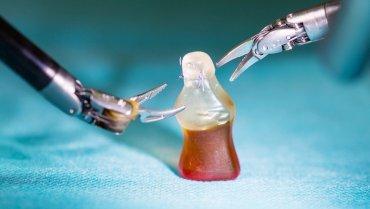 Minimal-invasive Chirurgie